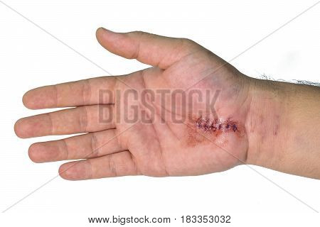 Minor surgery Carpal Tunnel Syndrome on hand