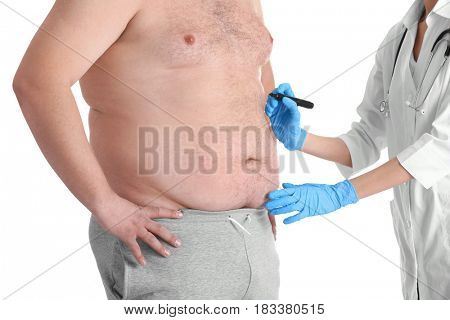 Female doctor applying marks onto belly of fat man on white background. Weight loss surgery concept