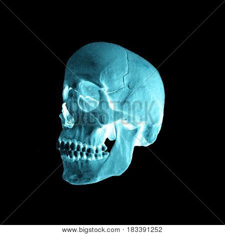A negative radiograph of a human skull
