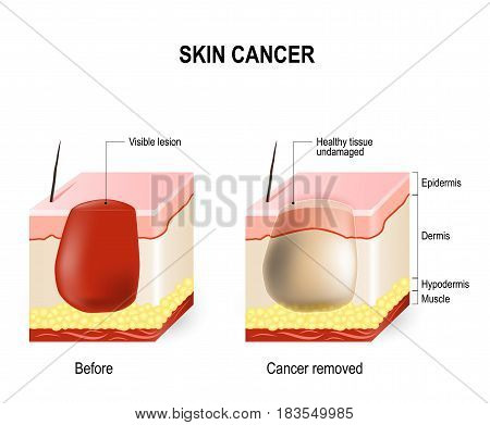 Skin Cancer Treatment. surgically removes. skin section with melanoma (before surgery) and skin is free of cancer (after cure).