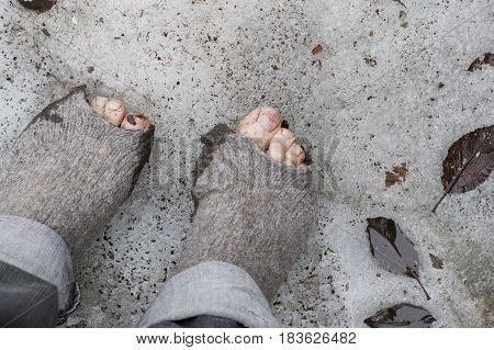 Male feet wearing rugged woolen socks standing on the snow and ice. Concept of poverty