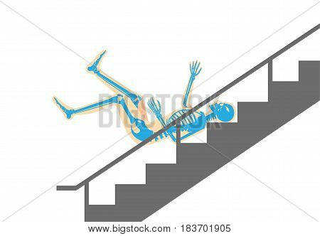 Human have back pain from slip down stairs. Illustration about cause of body injury.