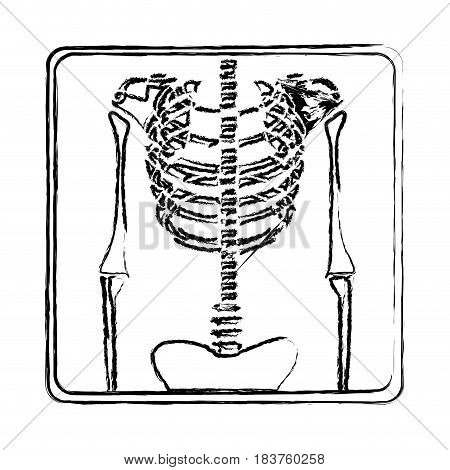 blurred silhouette with x-ray of bones vector illustration