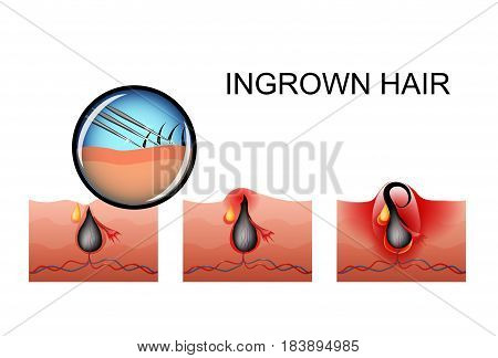 vector illustration of ingrown hair the maturation of the pimple