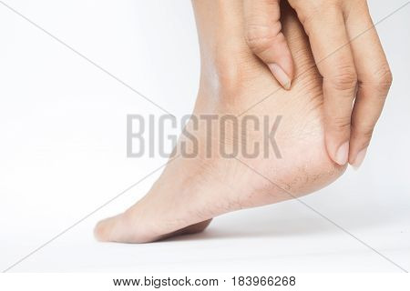 Woman cracked heels with white background Foot healthy concept