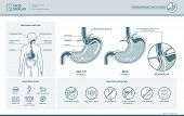 Acid reflux heartburn and gerd infographic with stomach medical illustration symptoms causes and prevention poster