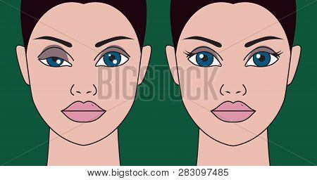 Ptosis Of Eyelid At Woman, Asymmetry Of Eyes, Plastic Surgery, Operating Correction Of Ptosis Eyes G