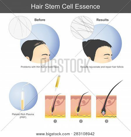 Stimulating hair growth using platelet rich plasma (PRP) to inject onto the scalp until it penetrates to the hair root. Infographic health care. poster