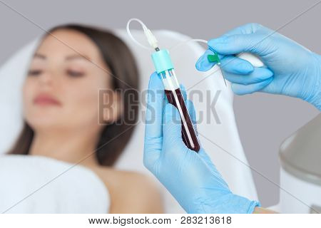 The blood tube is removed to the medical centrifuge for plasma lifting. Prp procedure poster