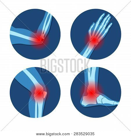 Rheumatism Or Rheumatic Disorder Medical Set. Arthritis Joint Pain Syndrome. Different Body Parts Wi