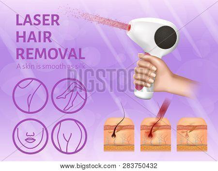 Laser Hair Removal. Icons Of Legs, Armpit, Face And Bikini. Skin Hair Bulbs Undergoing Procedure. Ad