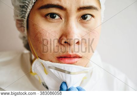 Healthcare Worker With Acne And Facial Wounds Occur From A Medical Mask After Work For A Long Time I