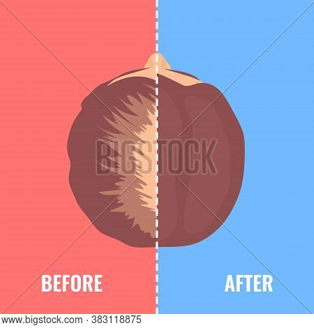 Balding Woman Before And After Hair Transplantation