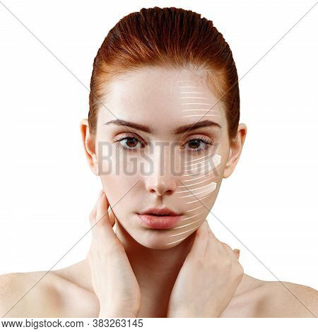 Face Lift Anti-aging Lines On Woman Face. Graphic Lines Showing Facial Lifting Effect On Skin. Isola