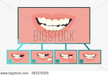 Partial Denture Dental. Stages Of Treatment. Vector Flat Stomatology Infographics Isolated On A Whit