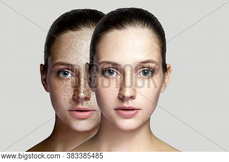 Closeup Before And After Portrait Of Beautiful Brunette Woman After Laser Treatment Removing Freckle