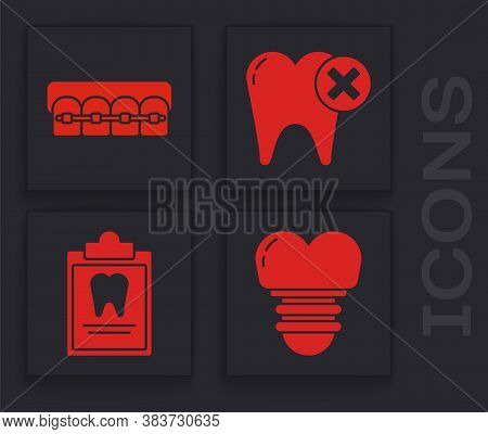 Set Dental Implant, Teeth With Braces, Tooth With Caries And Clipboard With Dental Card Icon. Vector