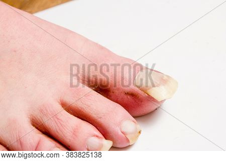 Mens Unkempt Feet With Long Uncut Nails. The Concept Does Not Follow Itself.