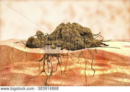 Invasive Cancer Growth, 3d Illustration Showing Tumor Invasion Into Underlined Tissue