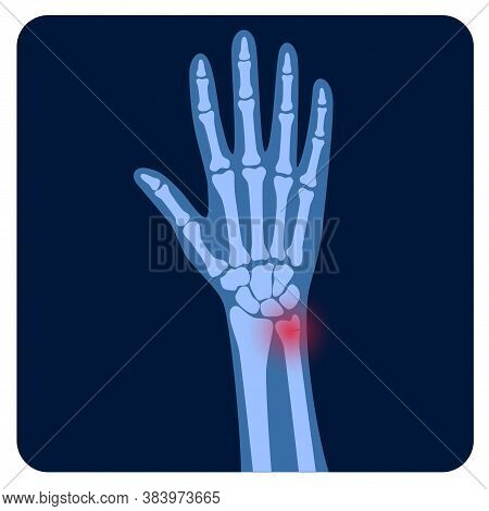 X Ray Of Arm Fracture With Red Pain Point And Inflammination. Broken Hand With Inner Closed Greensti