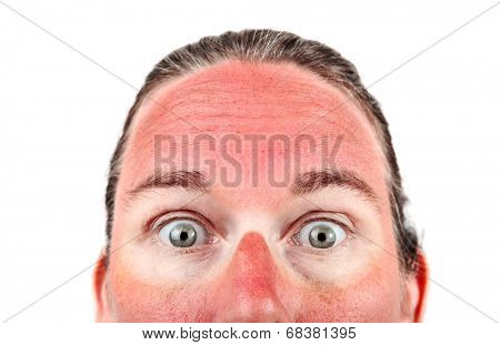 Woman with Sunglasess sunburn