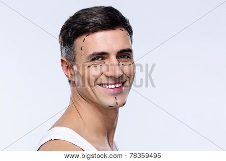 Happy man marked with lines for plastic surgery