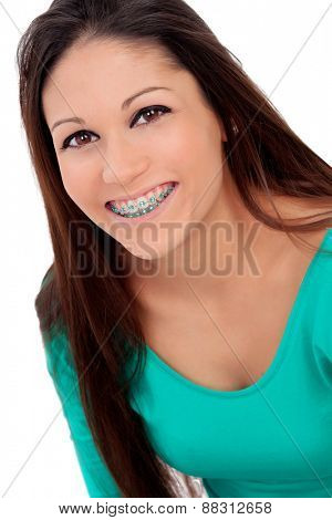 Smiling cool girl with brackets isolated on a white background