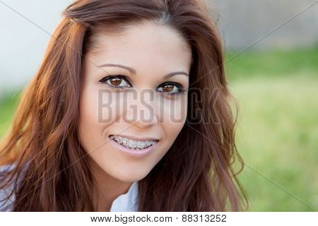 Portrait of a beautiful girl with brackets at the park