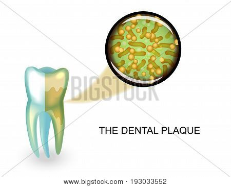 vector illustration of dental plaque. microbes under magnification