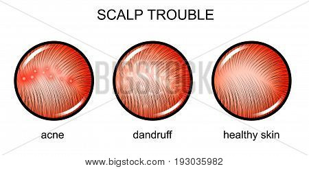 vector illustration of a problematic scalp. dermatology poster