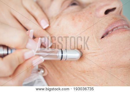 poster of Microdermabrasion treatment on a senior woman face