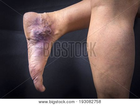 Human Foot With Varicose Veins