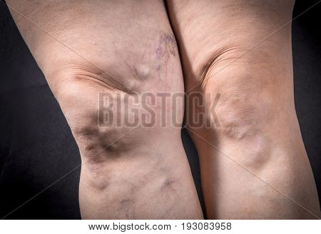 Human Legs With Varicose Veins