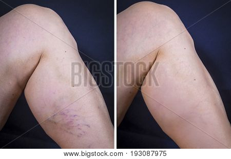 Human Leg With Varicose Veins Before And After Treatment