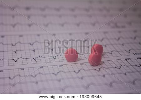 Blurred electrocardiogram strip and three large, out-of-focus pink pills.