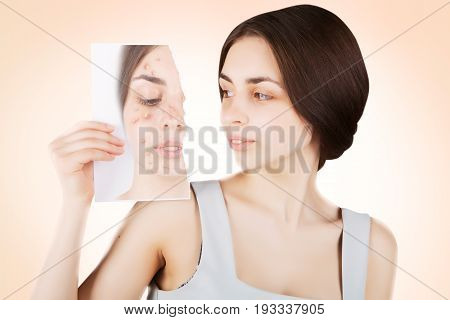 brunette woman fights with acne, pink background
