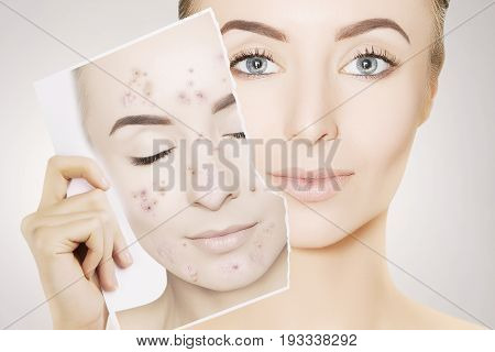 gorgeous woman with perfect skin releases her face from pimples
