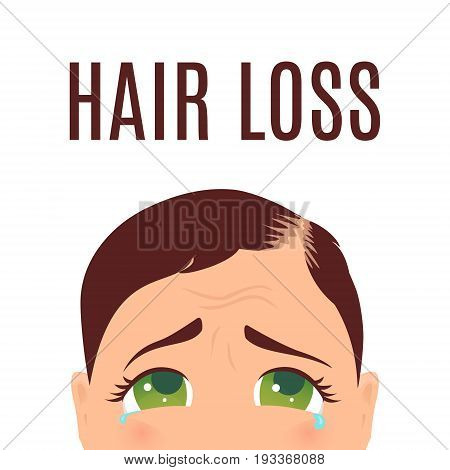 Woman suffering from hair loss. Alopecia treatment and transplantation concept. Can be used by clinics and diagnostic centers. Isolated vector illustration.