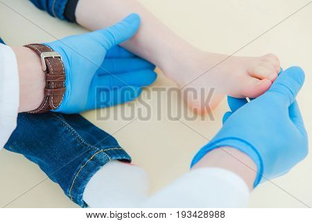 Child Joint Dislocation or Luxation. Healing the Foot. Doctor Examining Little Girl Foot Using Blue Medical Gloves.