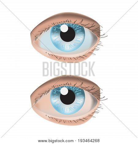 Vector illustration isolated with photo realistic two eyes on white background. Red eye and normal.