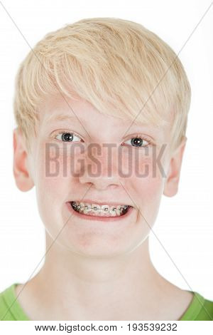 Young Blond Boy Showing Off His New Braces