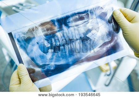 Dentist study x-ray scan before implantation. Doctor prepare for great dental implantation procedure. Lost teeth x-ray before implantation