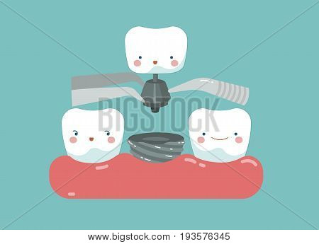 Tooth implant ,teeth and tooth concept of dental