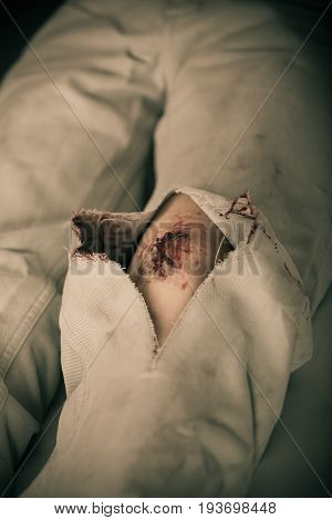Close Up Of Torn Pants With Large Bleeding Gash