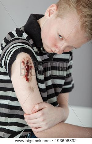 Boy Holding Bloody Arm With Large Gash