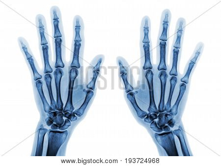 Film x-ray both hand AP show normal human hands on white background ( isolated )