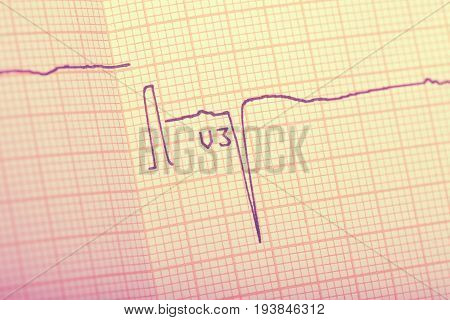 ECG result recorded on the paper close-up.