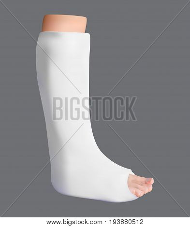 Plastered leg. Treatment of a broken leg. Medicine and health. Isolated object. Vector illustration.