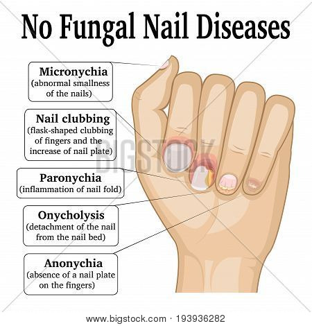 Illustration of five different non fungal nail diseases