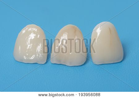 ceramic crowns in a dental laboratory close up